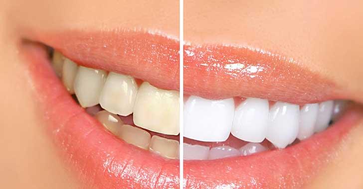 Aclaramiento express, la tendencia en estética dental