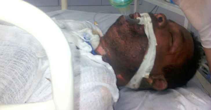 Indignante ataque a habitante de calle al que le prendieron fuego