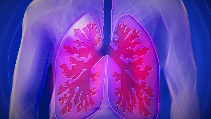 Exposición a polvo orgánico, humos y pesticidas aumenta el riesgo de Epoc