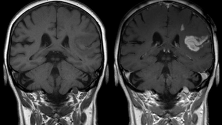 Sufrir un infarto cerebral duplica el riesgo de demencia