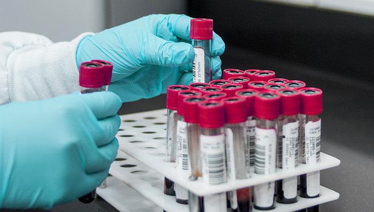 """Test de sangre permite conocer el """"reloj biológico"""" de pacientes en 90 minutos"""