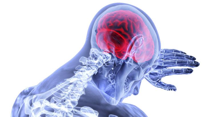 Más del 50% de personas con epilepsia en América Latina no tiene tratamiento