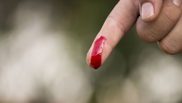 35 personas con hemofilia y otras alteraciones de la sangre en el Quindío