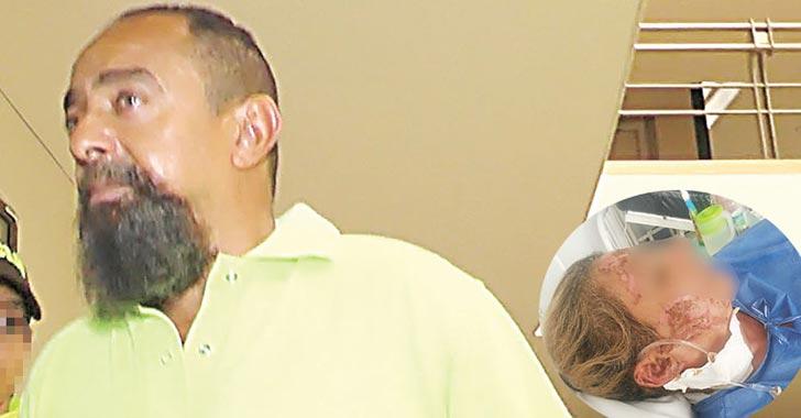 En firme condena contra Lazaro Mili Reyes, el cubano que le prendió fuego a su pareja