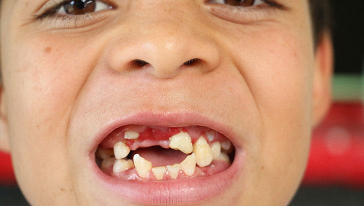 Niño que perdió dientes en una caída está a la espera de un tratamiento