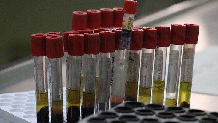 Aprobados 2 laboratorios para diagnóstico de la COVID-19