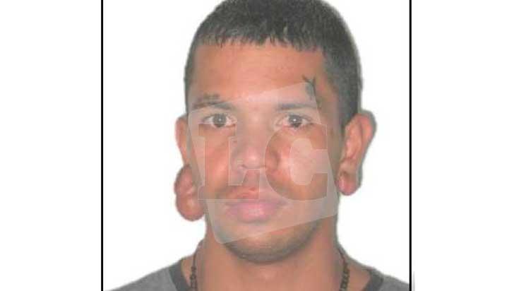 Hombre falleció este martes producto de quemaduras sufridas en cara y cuerpo