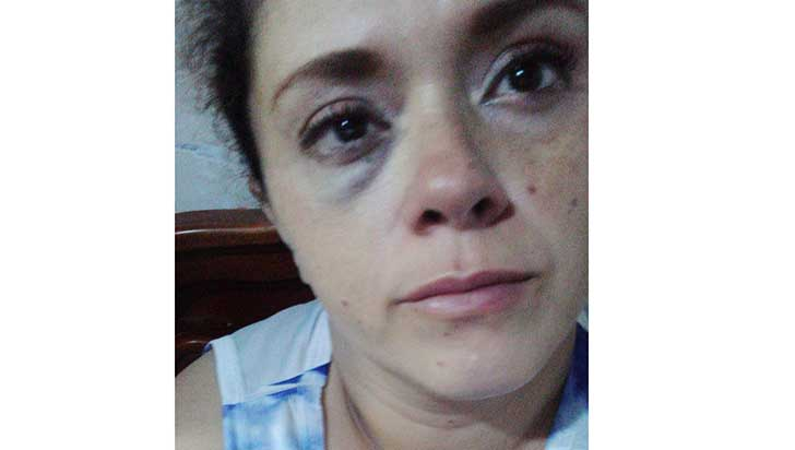 Mujer denunció a su cuñado, quien la  habría golpeado y acosado sexualmente