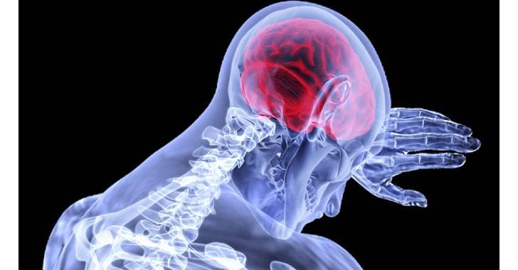 Accidentes cerebrovasculares segunda causa de muerte en el mundo