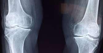 Hallan mutación que debilita los huesos con los fármacos para osteoporosis