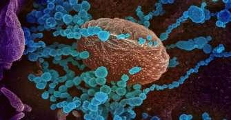 El anticuerpo que neutraliza el anterior SARS también funciona con el nuevo coronavirus