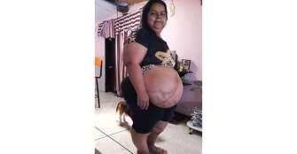 Desprendimiento de abdomen la tiene sin poder valerse por sí misma
